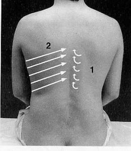 Tachycardia a ernia di reparto cervicale di una spina dorsale