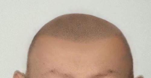 Pigmentazione capelli b0d2fcd30708
