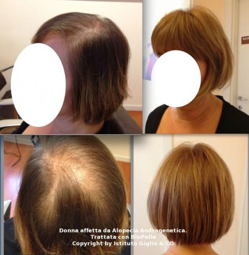 vitamine per infoltire i capelli