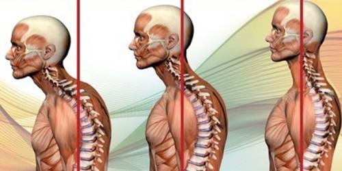 Trattamento dopo operazione su eliminazione di ernia intervertebrale