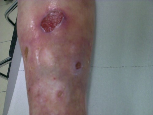Sintomi di thrombophlebitis di una trombosi di vena di gambe